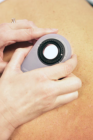 Doctor at Skin HQ using dermascope during a skin examination to check for signs of possible skin cancer