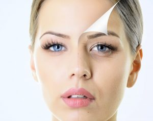 Model with simulated anti wrinkle treatment before and after