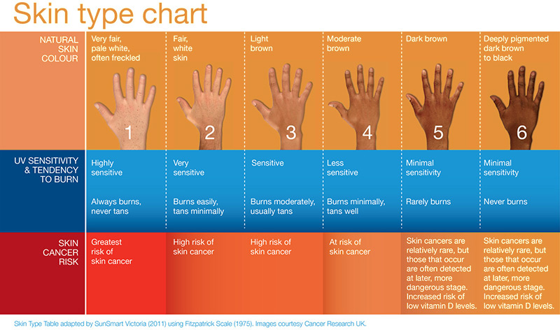 Skin type chart. PDT therapy is only recommended for skin types one, two or three